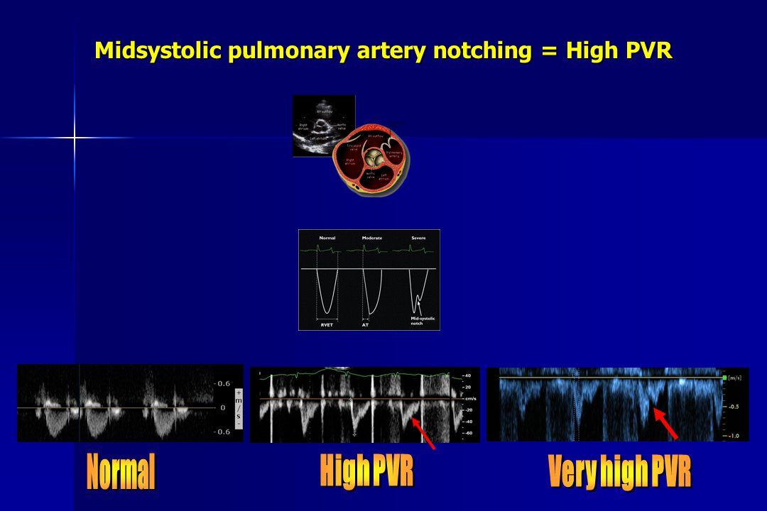 Midsystolic pulmonary artery notching = High PVR
