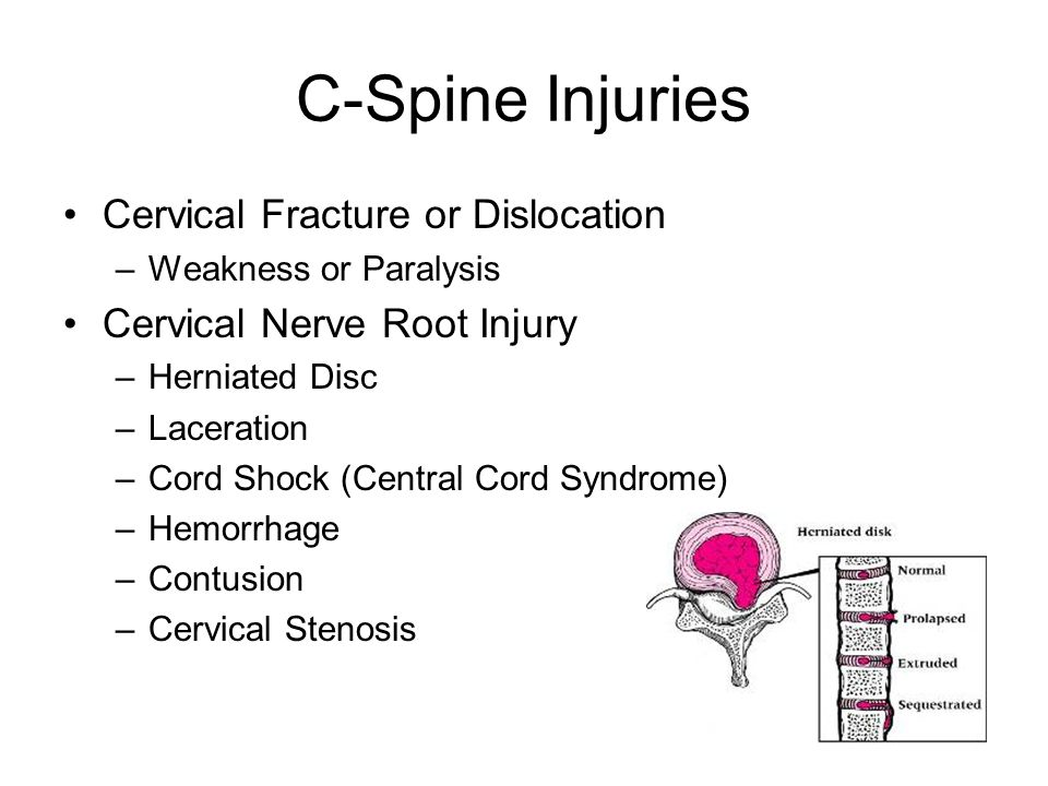 C-Spine Injuries Cervical Fracture or Dislocation
