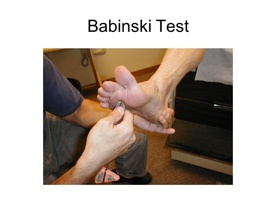 Babinski Test