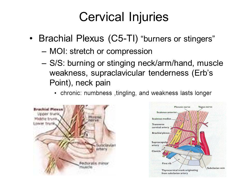 Cervical Injuries Brachial Plexus (C5-TI) burners or stingers