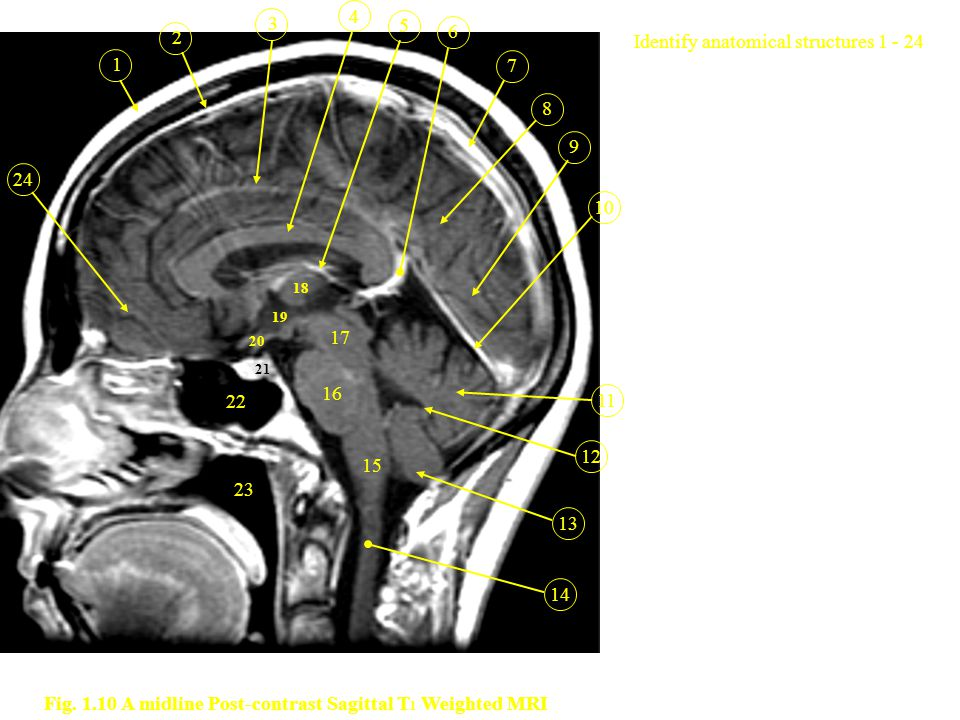 Fig. 1.10 A midline Post-contrast Sagittal T1 Weighted MRI