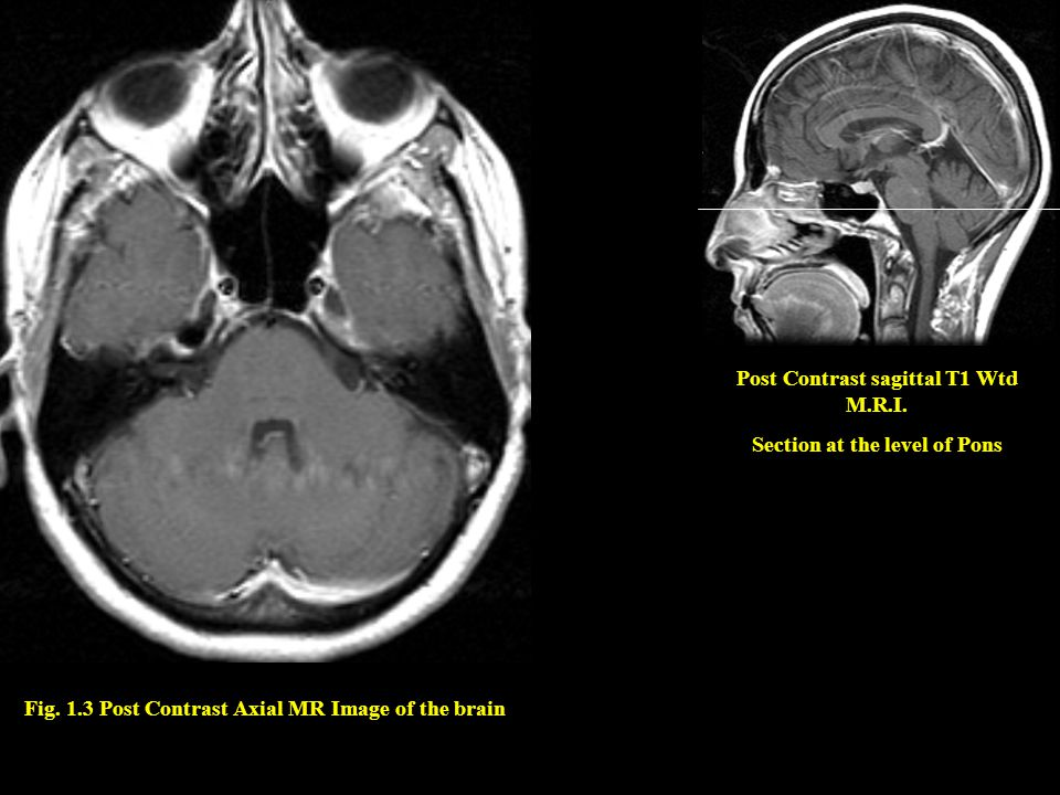 Post Contrast sagittal T1 Wtd M.R.I. Section at the level of Pons