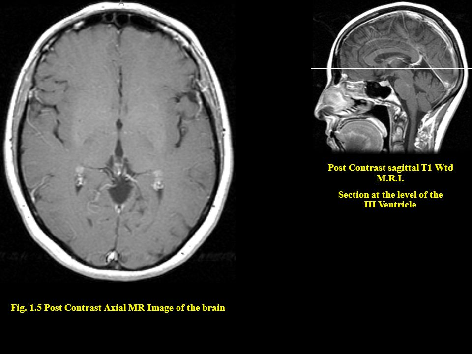 Post Contrast sagittal T1 Wtd M.R.I. Section at the level of the