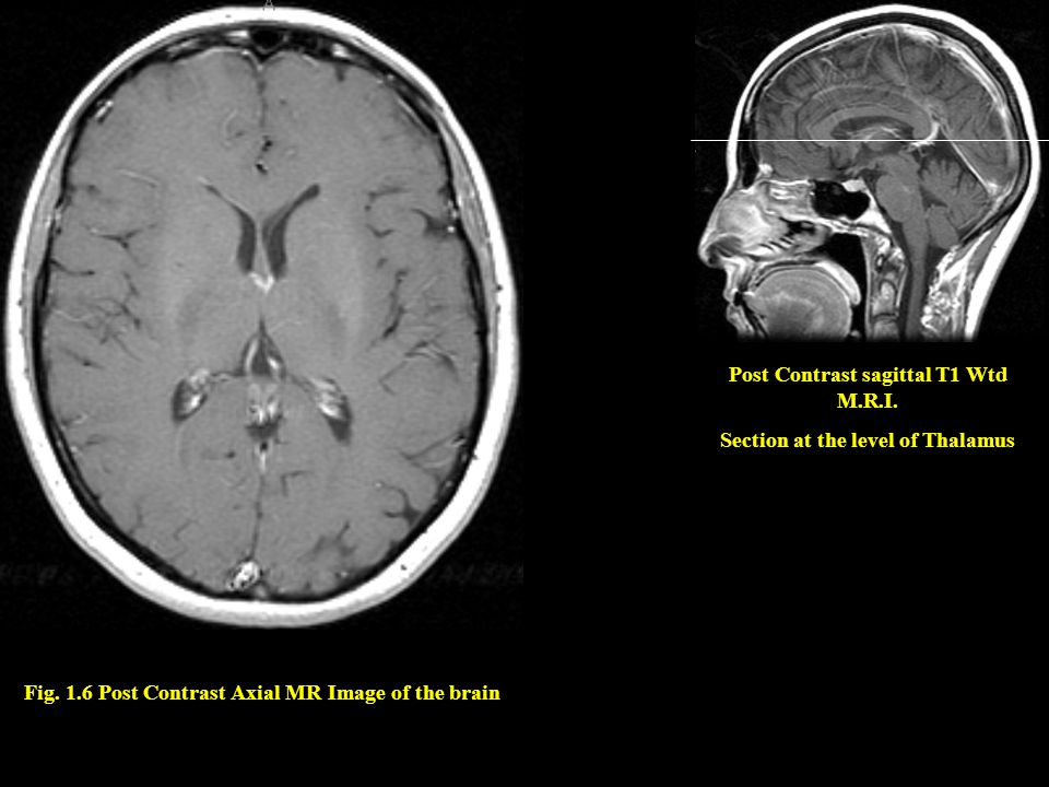 Post Contrast sagittal T1 Wtd M.R.I. Section at the level of Thalamus