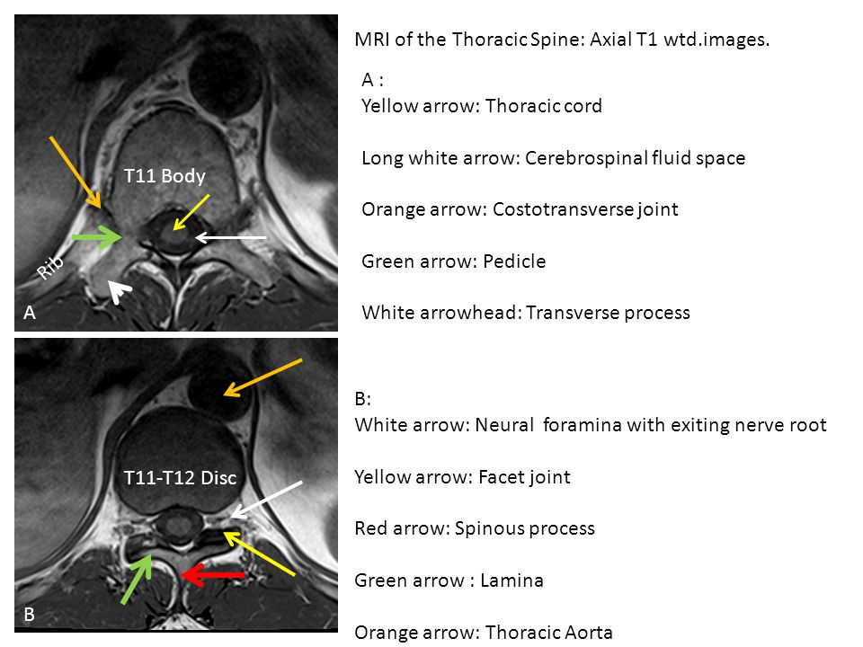 MRI of the Thoracic Spine: Axial T1 wtd.images.