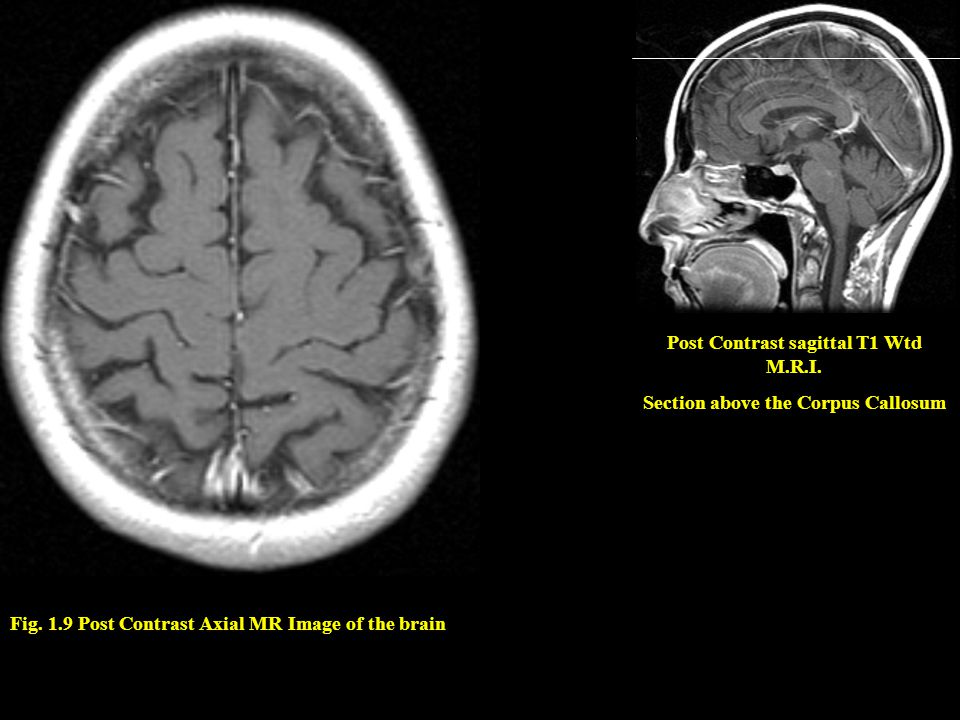 Post Contrast sagittal T1 Wtd M.R.I. Section above the Corpus Callosum