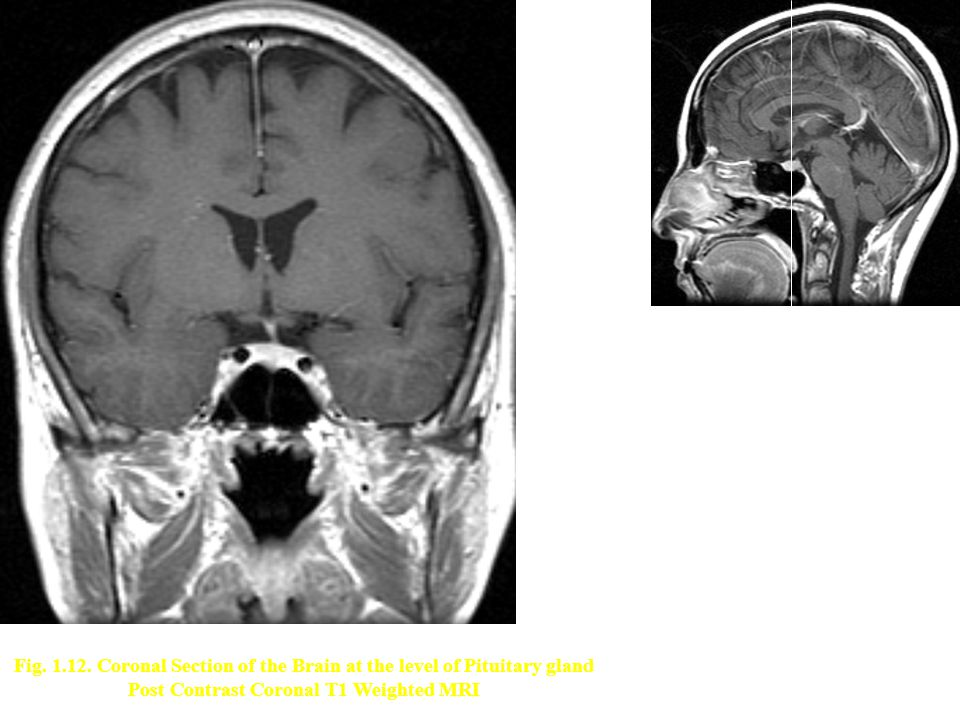 Post Contrast Coronal T1 Weighted MRI
