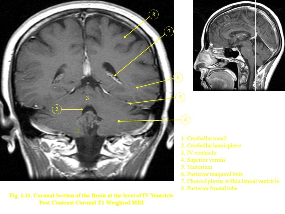 2. Cerebellar hemisphere 3. IV ventricle 4. Superior vermis