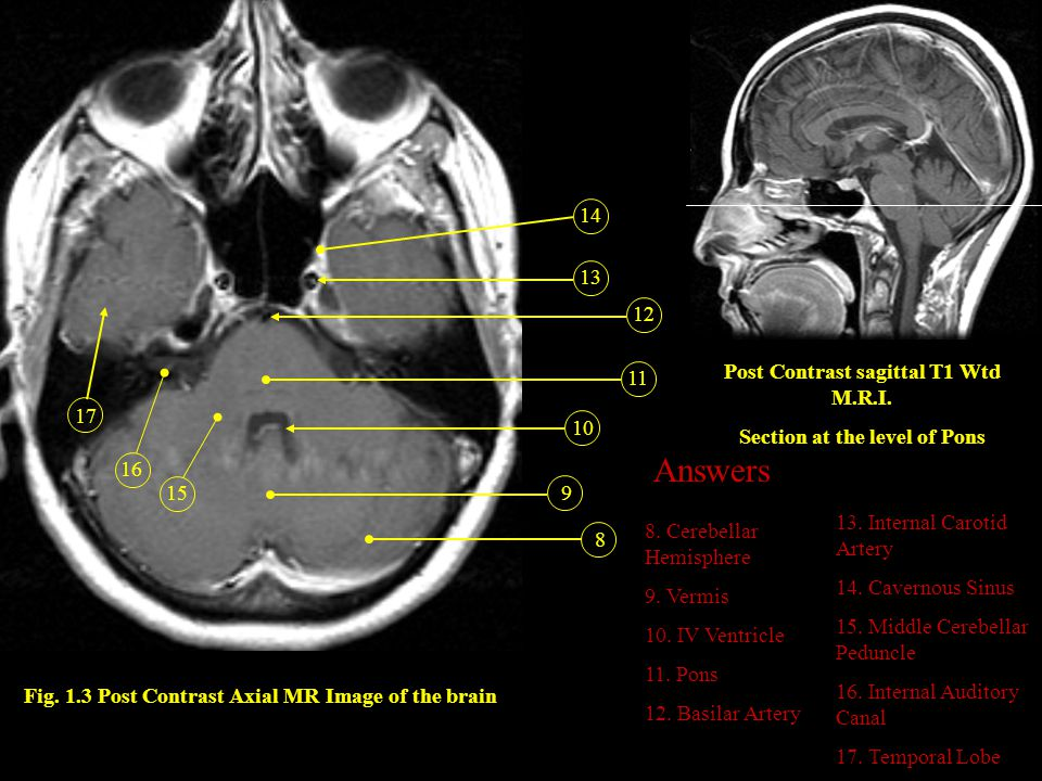 Answers 14 13 12 Post Contrast sagittal T1 Wtd M.R.I. 11