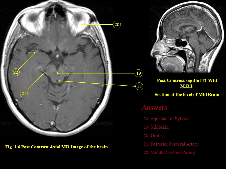 Answers 20 22 19 Post Contrast sagittal T1 Wtd M.R.I. 18