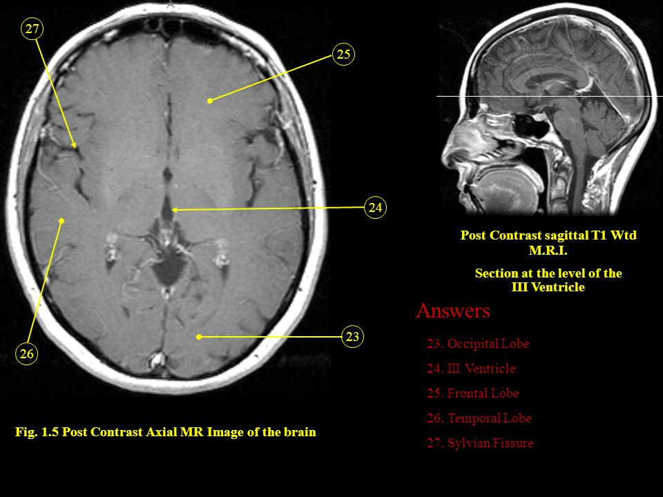 Answers 27 25 24 Post Contrast sagittal T1 Wtd M.R.I.