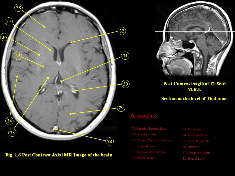 Answers 38 37 32 36 35 31 30 Post Contrast sagittal T1 Wtd M.R.I.