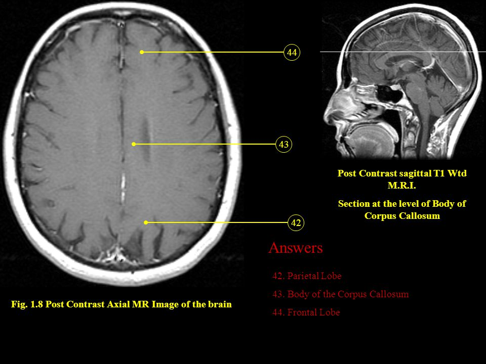 Answers 44 43 Post Contrast sagittal T1 Wtd M.R.I.