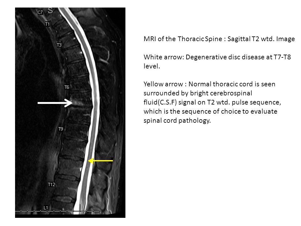 MRI of the Thoracic Spine : Sagittal T2 wtd. Image