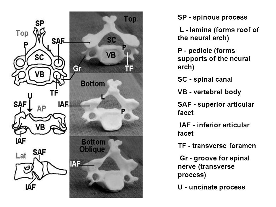 SP - spinous process L - lamina (forms roof of the neural arch) P - pedicle (forms supports of the neural arch)