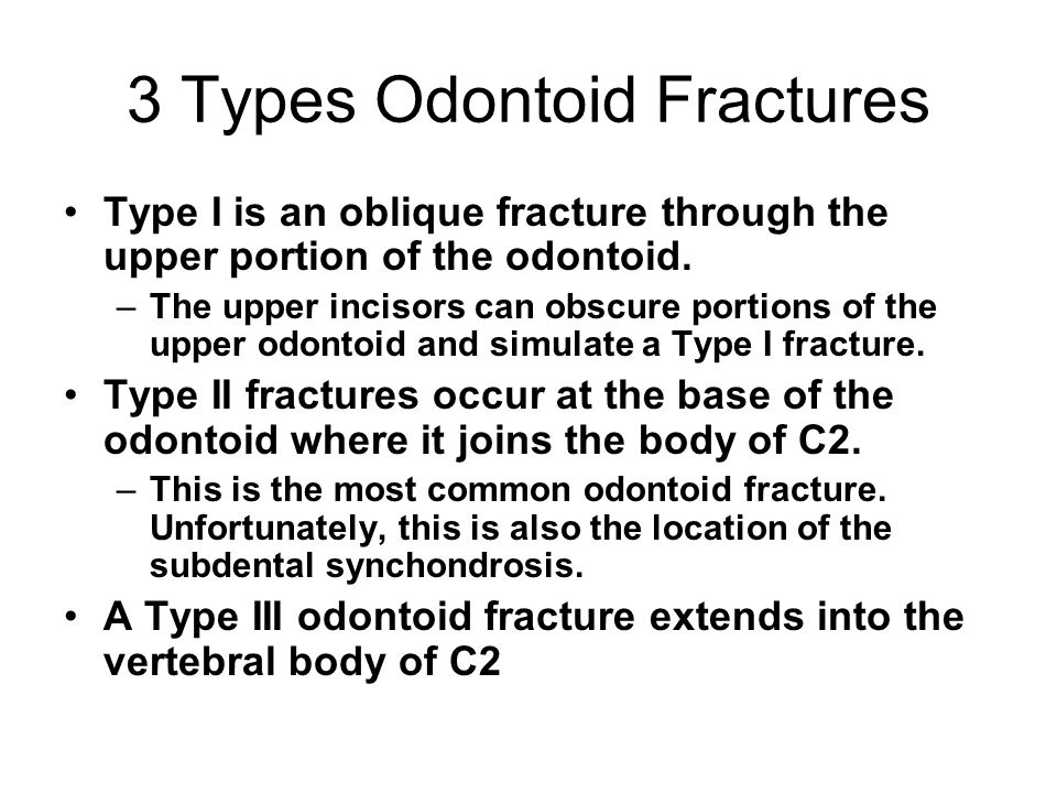 3 Types Odontoid Fractures