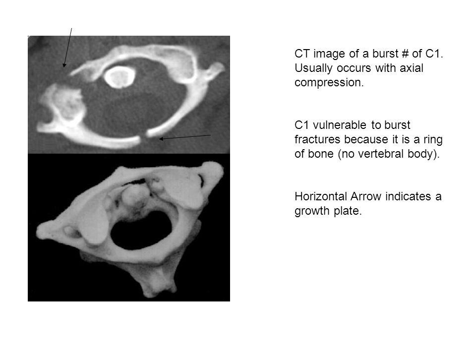 CT image of a burst # of C1. Usually occurs with axial compression.