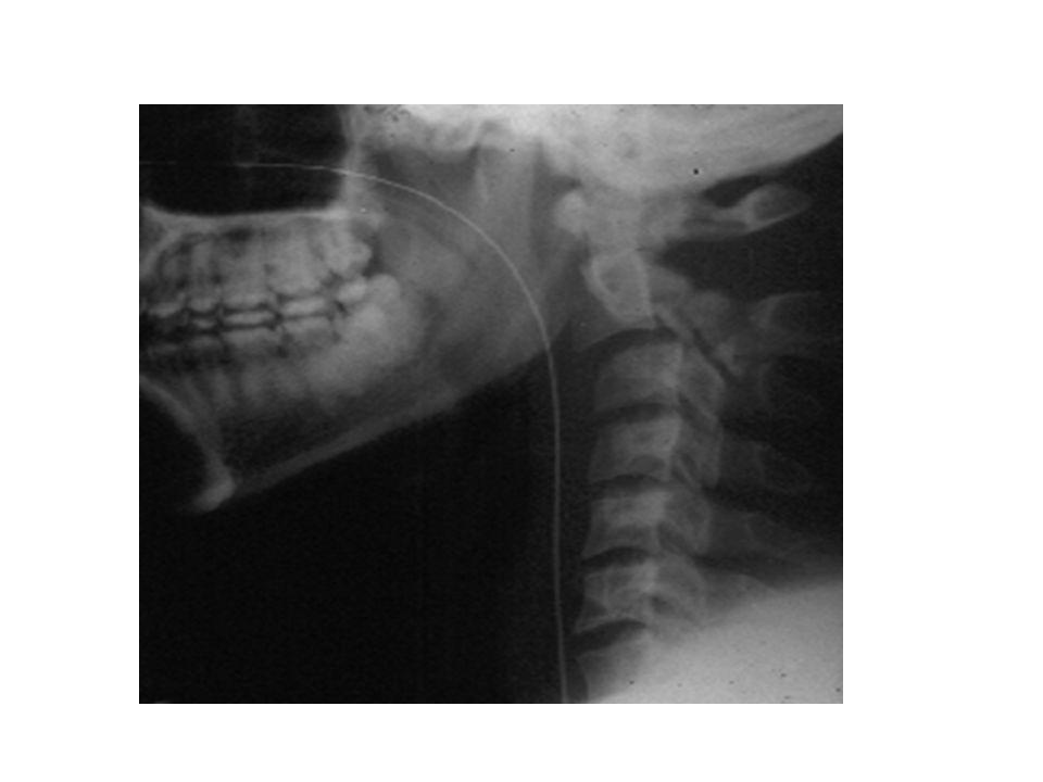Hangman's fracture