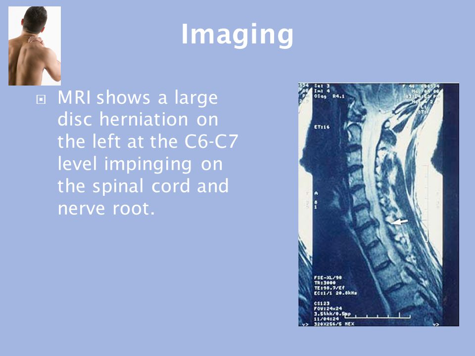 Imaging MRI shows a large disc herniation on the left at the C6-C7 level impinging on the spinal cord and nerve root.