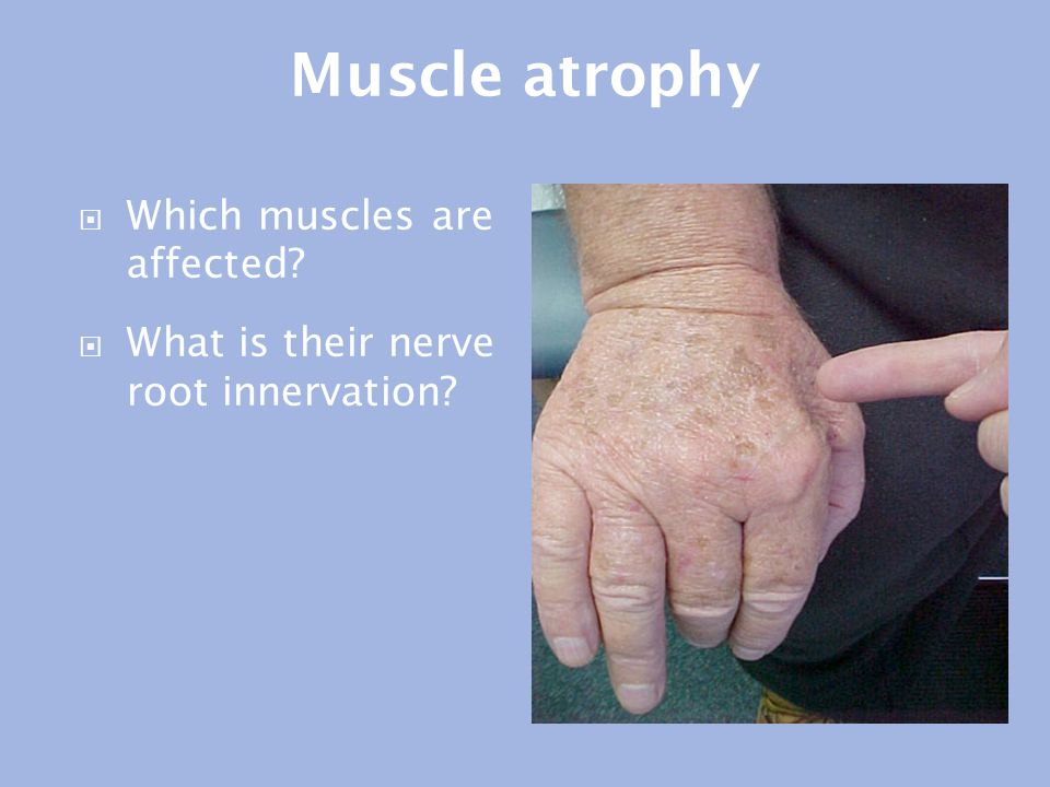 Muscle atrophy Which muscles are affected