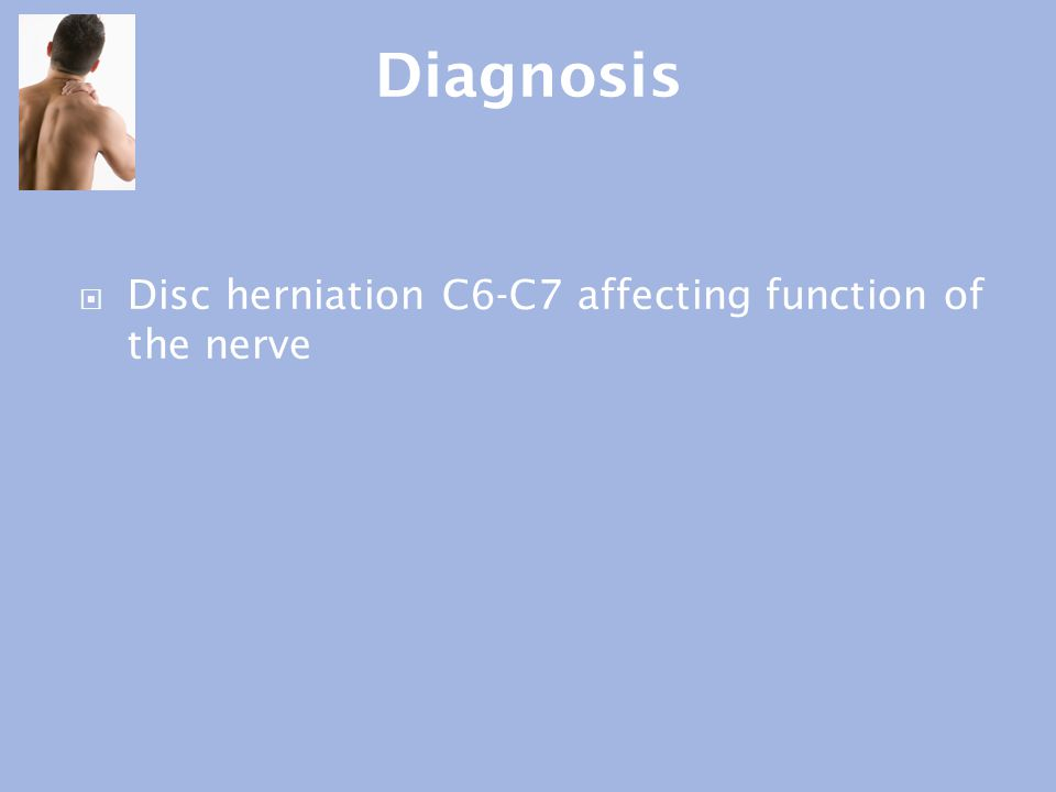 Diagnosis Disc herniation C6-C7 affecting function of the nerve