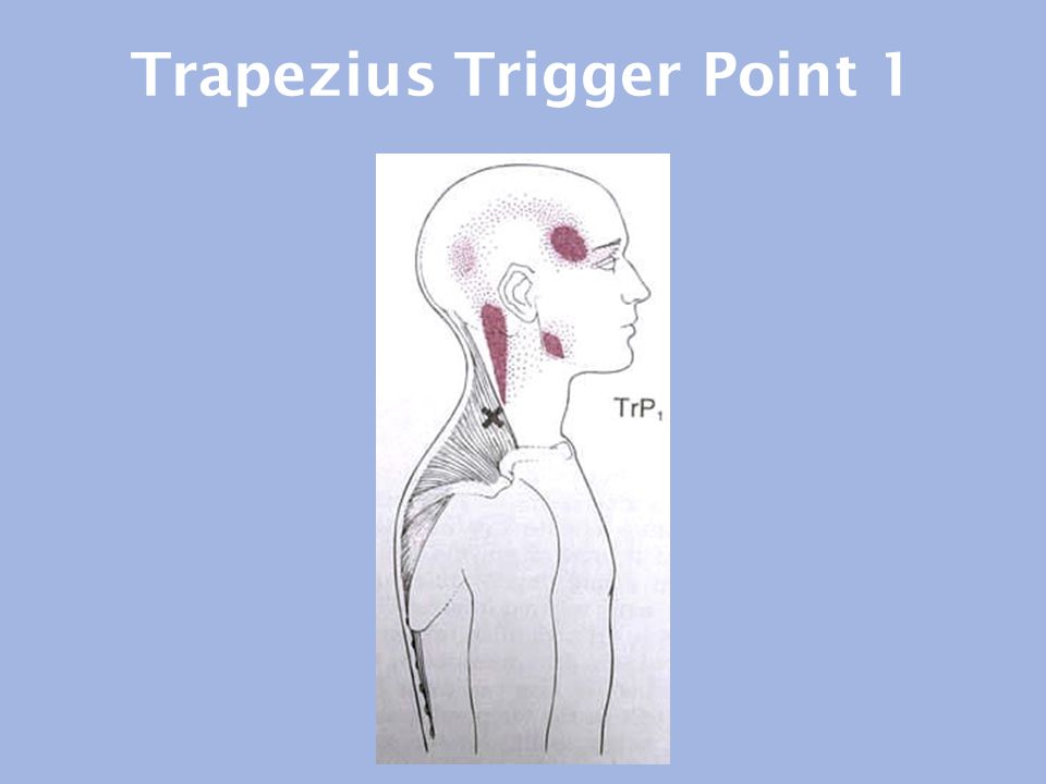 Trapezius Trigger Point 1