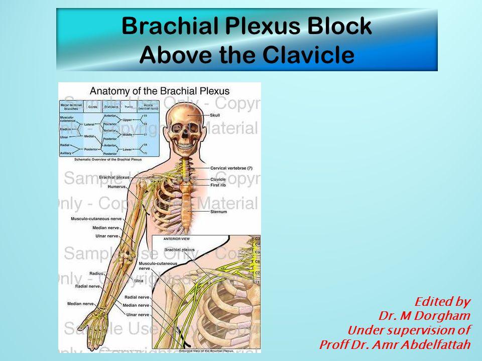 Brachial Plexus Block Above the Clavicle Edited by Dr. M Dorgham
