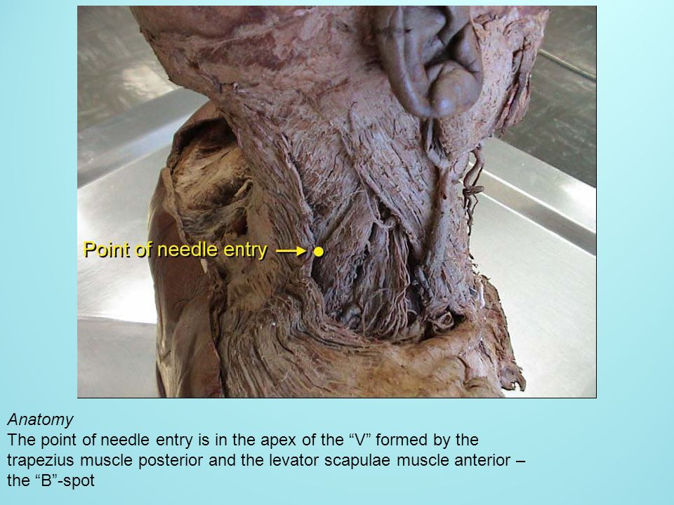 Anatomy The point of needle entry is in the apex of the V formed by the. trapezius muscle posterior and the levator scapulae muscle anterior –