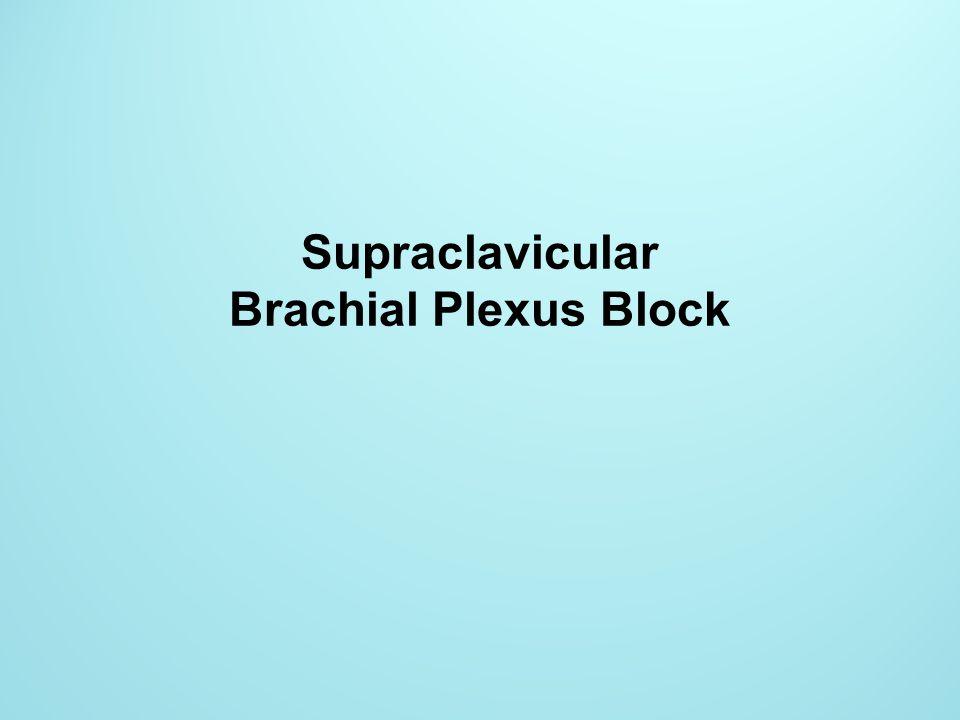 Supraclavicular Brachial Plexus Block