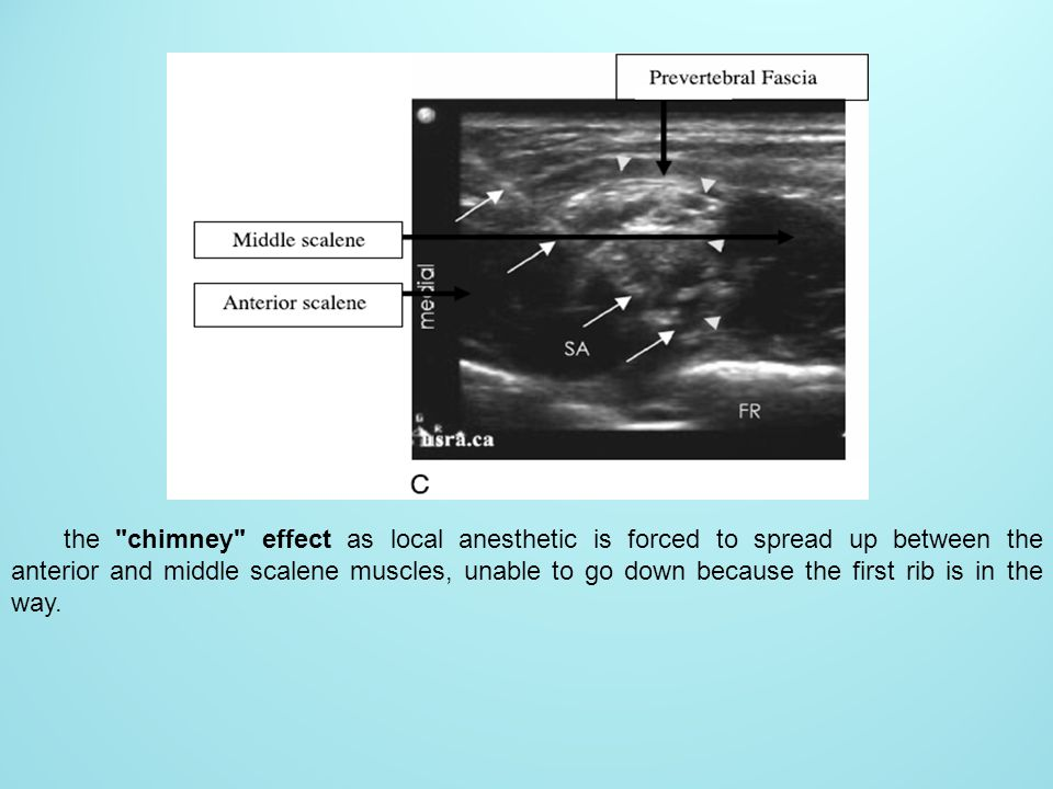 the chimney effect as local anesthetic is forced to spread up between the anterior and middle scalene muscles, unable to go down because the first rib is in the way.