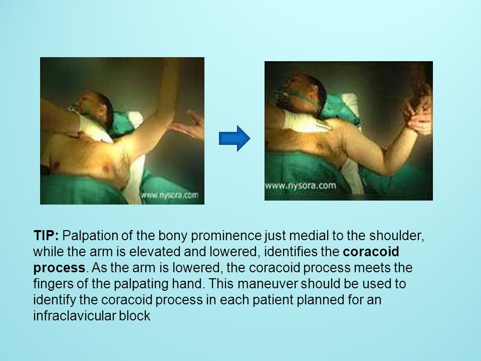 TIP: Palpation of the bony prominence just medial to the shoulder, while the arm is elevated and lowered, identifies the coracoid process.