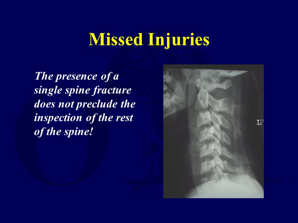 Missed Injuries The presence of a single spine fracture does not preclude the inspection of the rest of the spine!