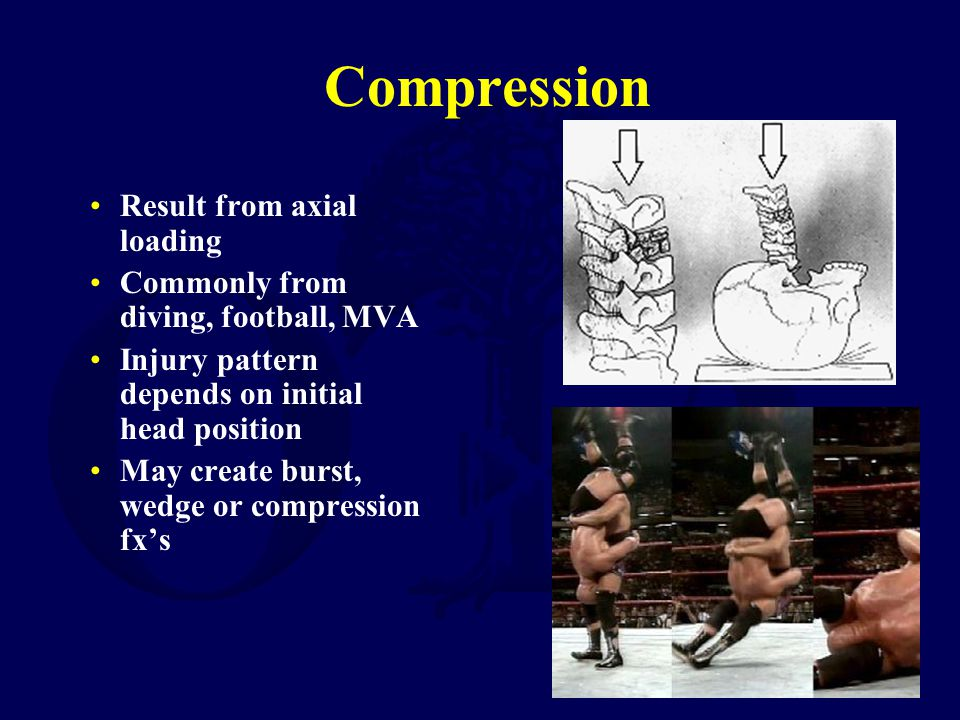 Compression Result from axial loading