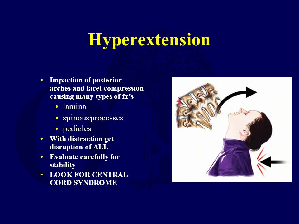 Hyperextension lamina spinous processes pedicles