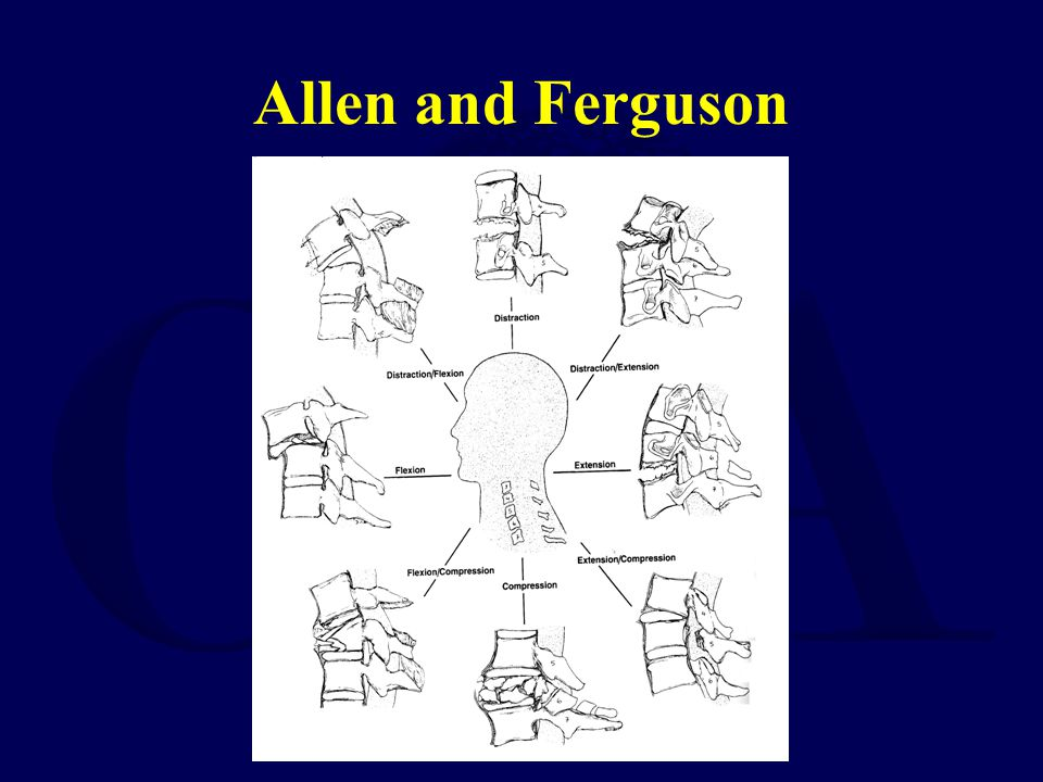 Allen and Ferguson