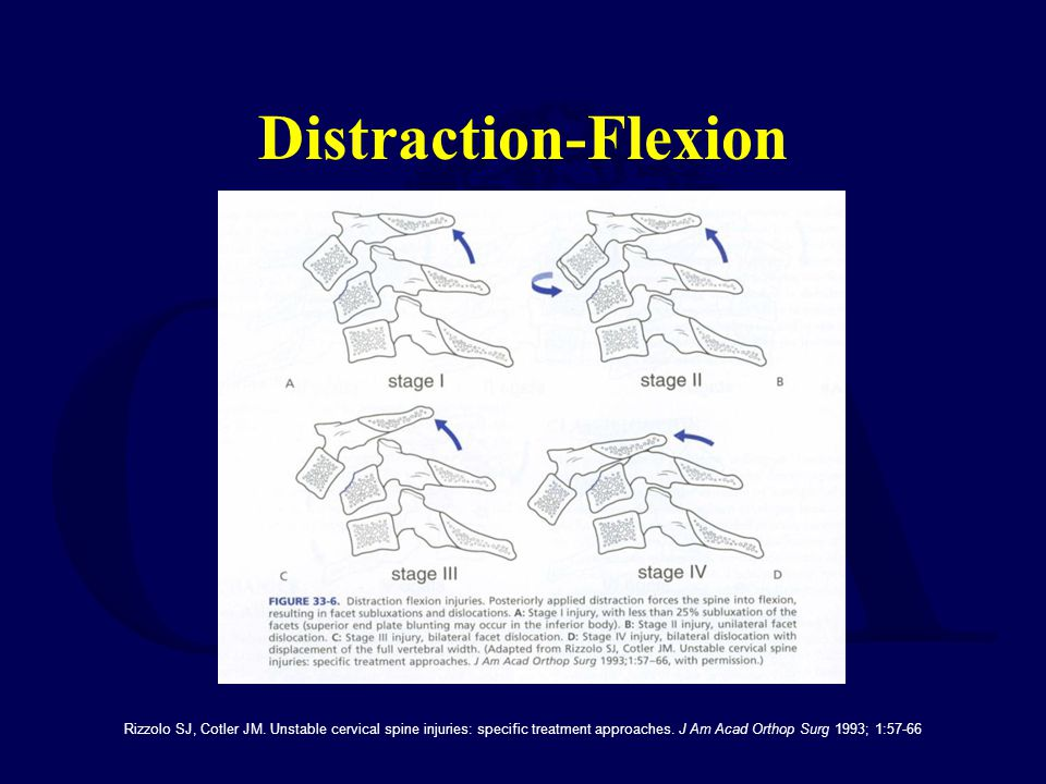 Distraction-Flexion Rizzolo SJ, Cotler JM.