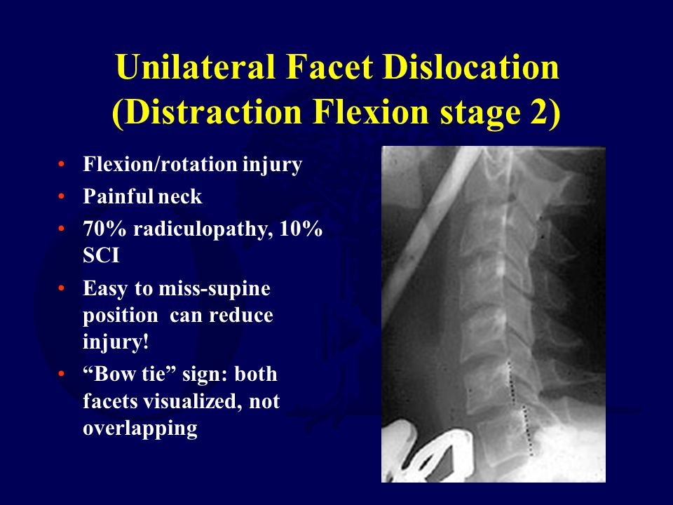 Unilateral Facet Dislocation (Distraction Flexion stage 2)
