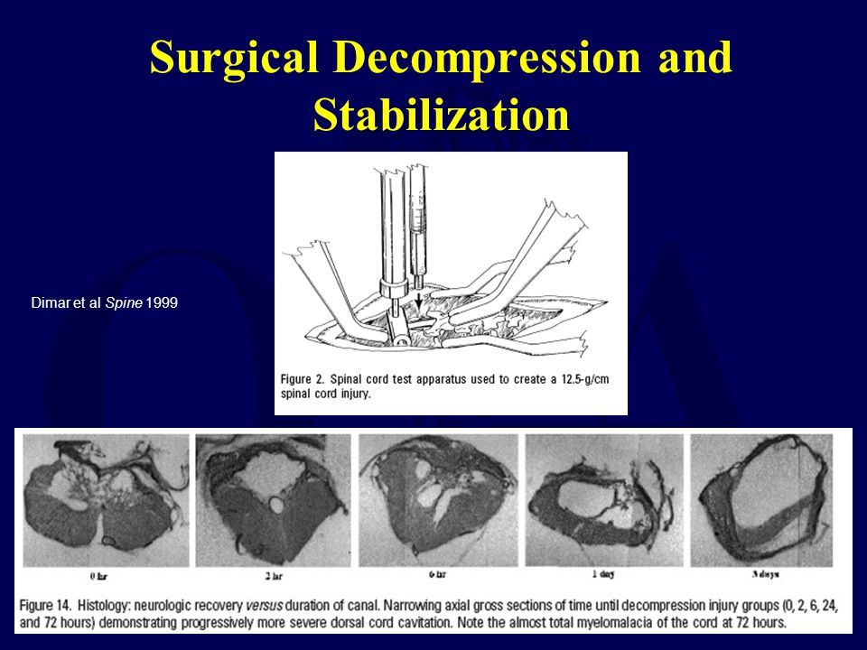 Surgical Decompression and Stabilization