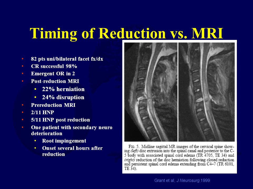 Timing of Reduction vs. MRI