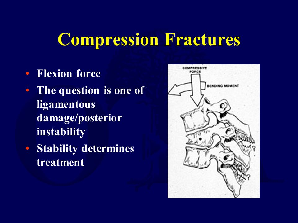 Compression Fractures