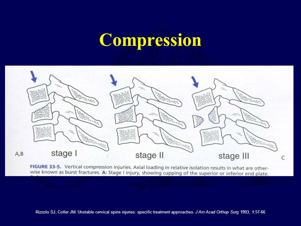 Compression Rizzolo SJ, Cotler JM. Unstable cervical spine injuries: specific treatment approaches.
