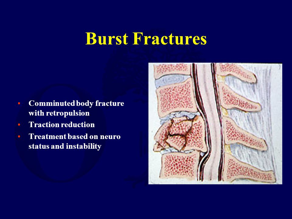 Burst Fractures Comminuted body fracture with retropulsion