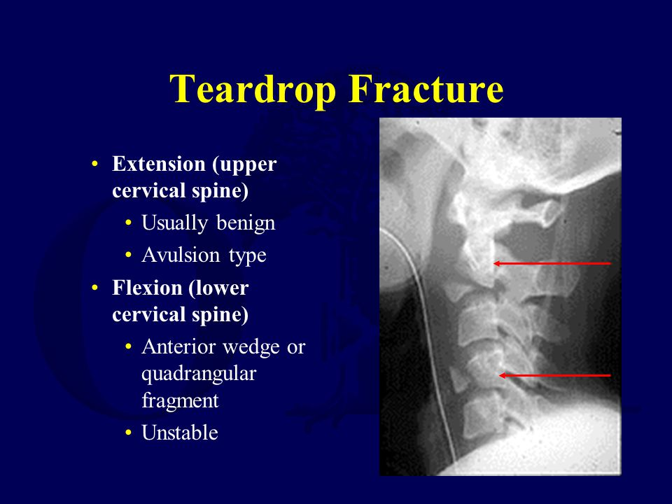 Teardrop Fracture Extension (upper cervical spine) Usually benign