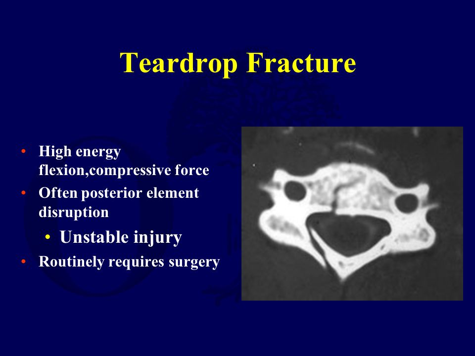 Teardrop Fracture Unstable injury