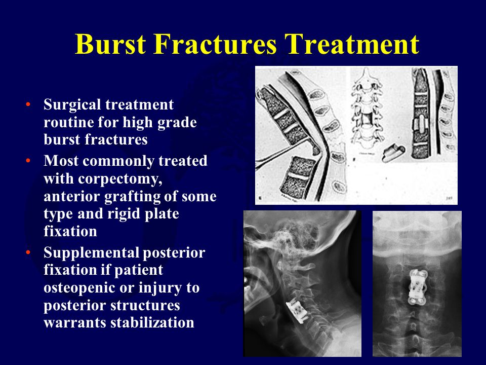 Burst Fractures Treatment