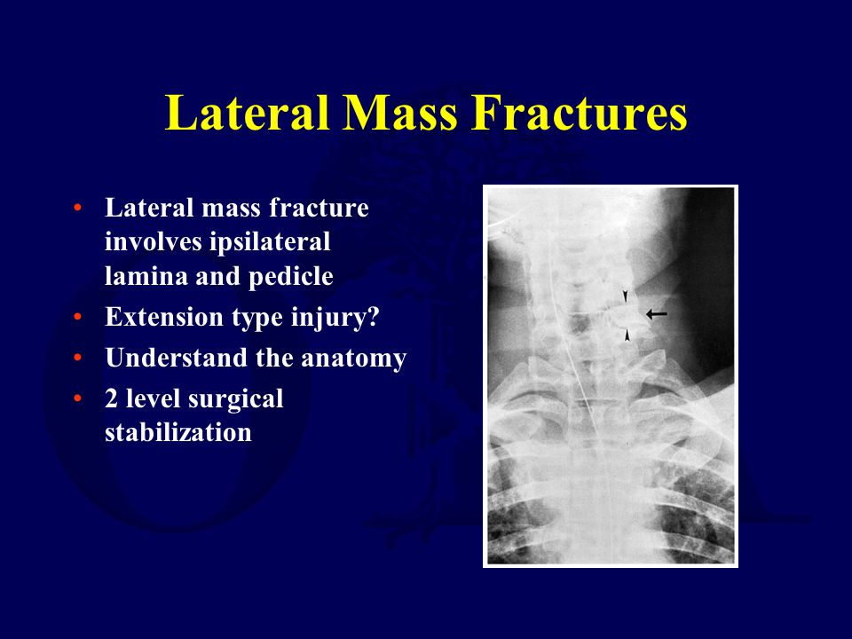 Lateral Mass Fractures