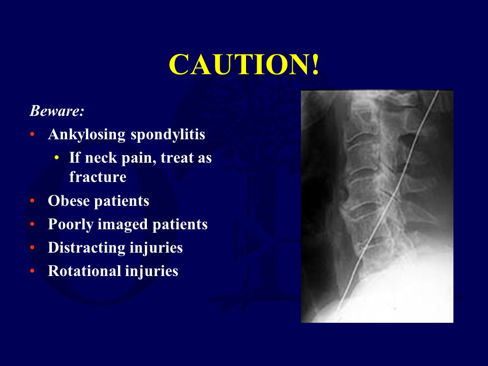 CAUTION! Beware: Ankylosing spondylitis