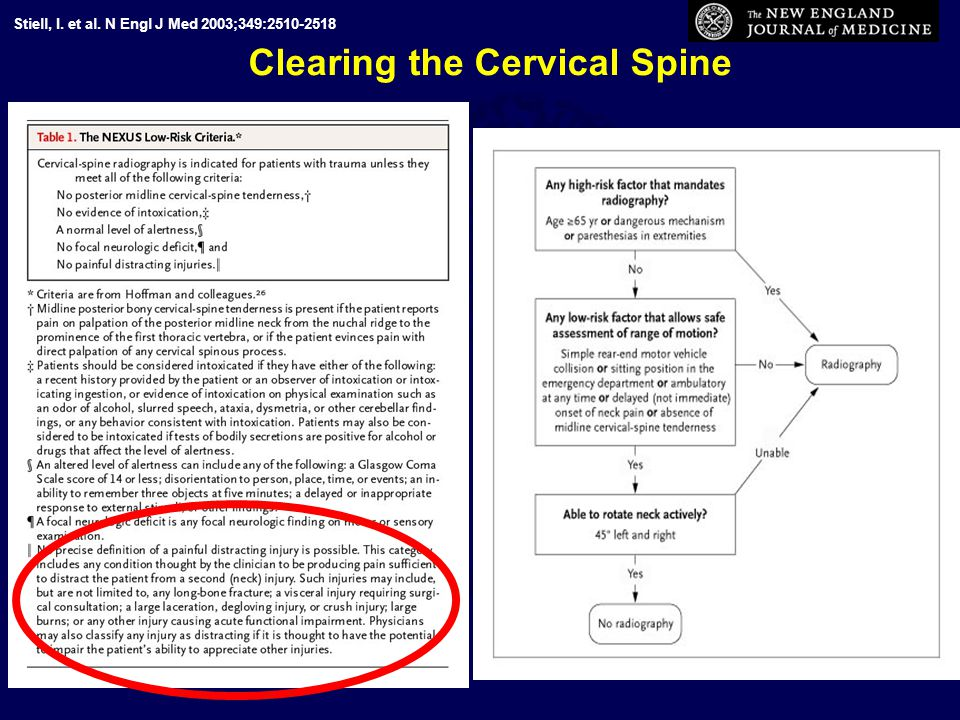 Clearing the Cervical Spine