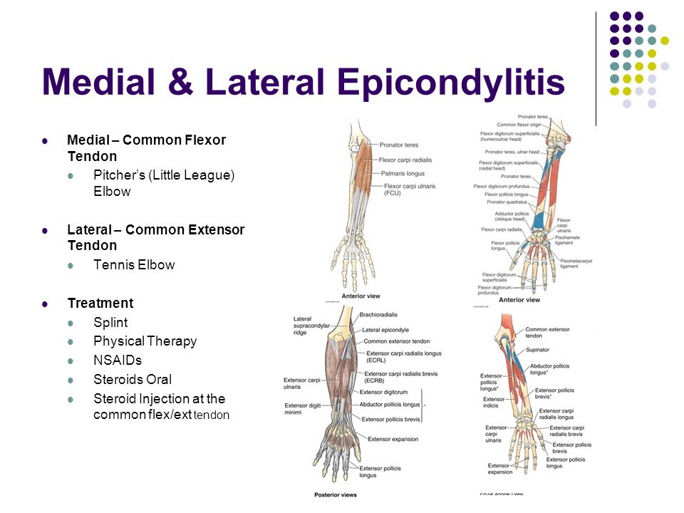 Medial & Lateral Epicondylitis