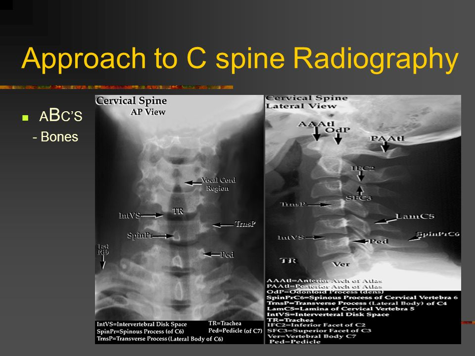 Approach to C spine Radiography